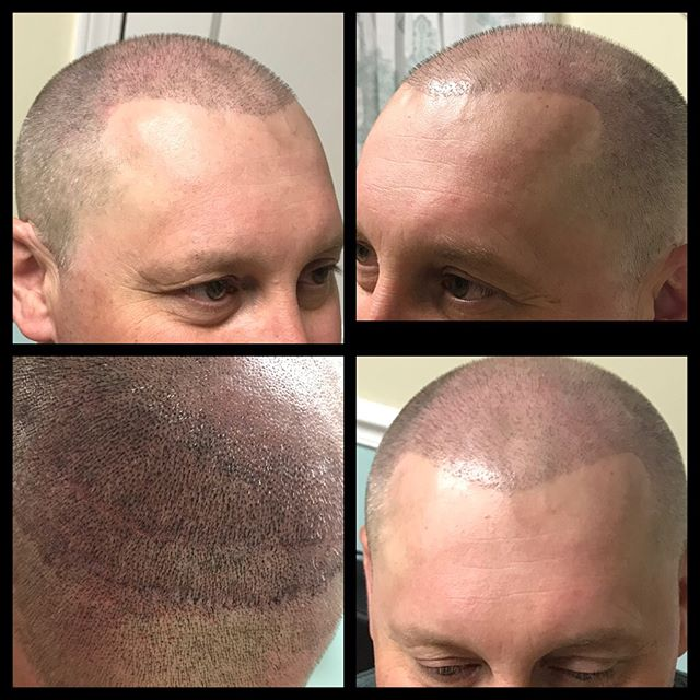 SMP swipe to see this young man's transformation! #pmu #scalptattoo #hairlosssolution #microscalppig