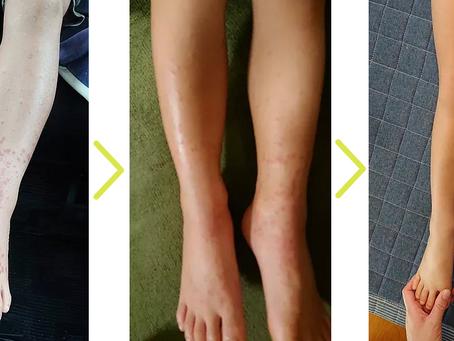 アレルギー性紫斑病4回の来院で卒業