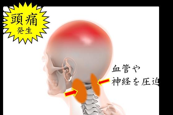 頭痛メカニズム.png