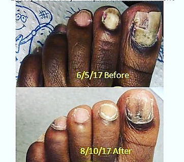 Fungal Toenails before and after 6_edite