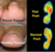 Pincer Toenails and Foot Type.jpg