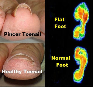 Pincer Toenails and Foot Type.jpg