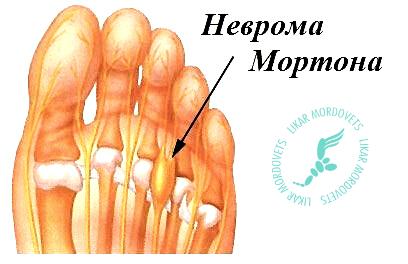 Неврома Мортона, или еще одна причина боли в стопе.