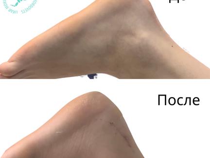 Оперативное лечение нароста на пятке (деформация Хаглунда)
