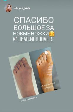 Лечение косточки (hallux valgus) на ноге