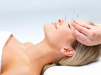 cosmetic-acupuncture-needle.jpeg