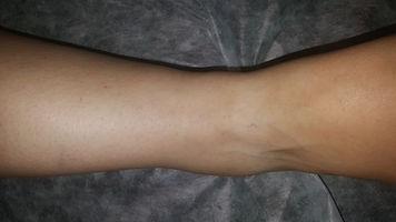 דיקור סיני טיפול שביעי לנקע כרוני בקרסול