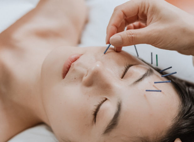 Miso Cosmetic Acupuncture at Origins Acupuncture as featured in Denizen Magaine and Together Journal.
