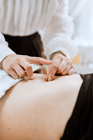 Origins Acupuncture Treatments