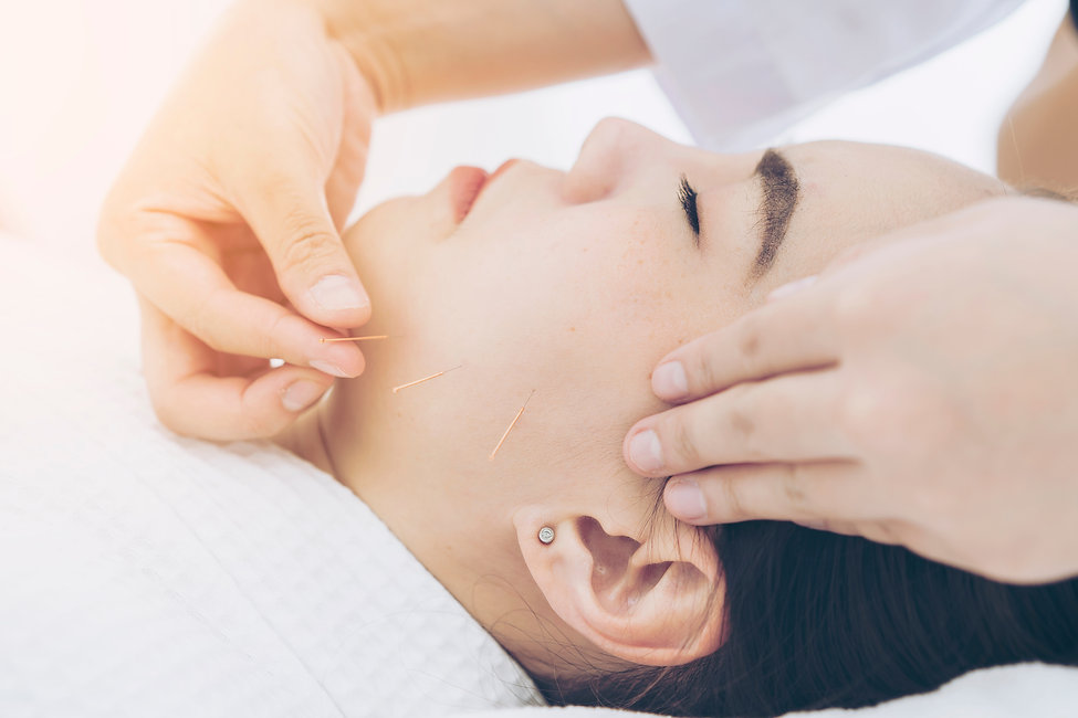 Miso Cosmetic Acupuncture as featured in the Denizen Magaine | Origins Acupuncture, Ponsonby