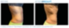 Emsculpt_PIC_Ba-card-female-abdomen-102_