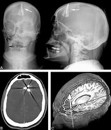 Traumatic Brain Injury (TBI) article by Jeffry Ellenbogen