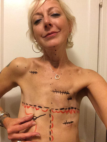 """""""Going flat"""" is a valid, beautiful, healthy surgical option after mastectomy   Photo: Marianne Duquette Cuozzo   www.flatclosurenow.org    #putflatonthemenu #flatclosurenow #goingflat #flat #flatmastectomy #mastectomy #bilateralmastectomy #doublemastectomy #noreconstruction #breastcancer #breastcancersurvivor #breastcancerawareness"""