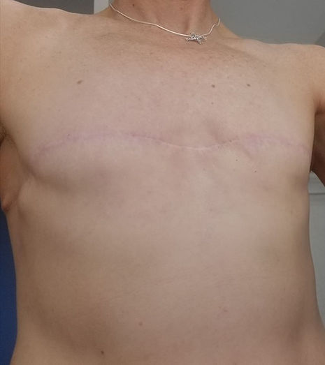 """""""Going flat"""" is a valid, beautiful, healthy surgical option after mastectomy   www.flatclosurenow.org    #putflatonthemenu #flatclosurenow #goingflat #flat #flatmastectomy #mastectomy #bilateralmastectomy #doublemastectomy #noreconstruction #breastcancer #breastcancersurvivor #breastcancerawareness"""