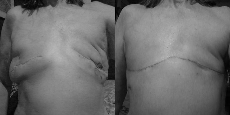If you're not satisfied with your mastectomy result, revision surgery may be an option for you. Learn more at www.flatclosurenow.org | #goingflat #flatclosure #putflatonthemenu #revisionsurgery #breastcancer #mastectomy #breastreconstruction