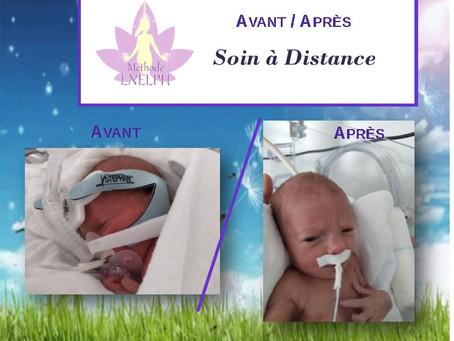 Avant/Après: Soin à Distance