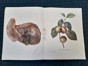 gall bladder.jpg