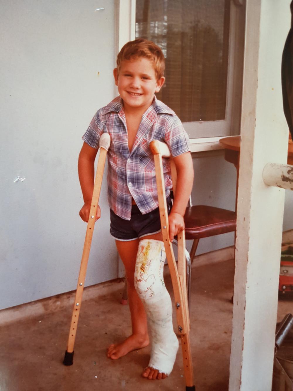 #kidsinjured #brokenleg #kidstrauma #davejohnson