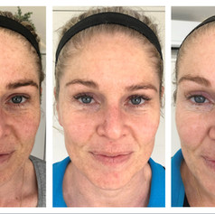 From left to right, before IPL pigmentation removal, after one treatment and final pic after two treatments