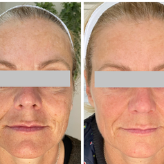 Acne - Before and after Dermapen Treatments for acne.  Use of DP Dermaceuticals to enhance results