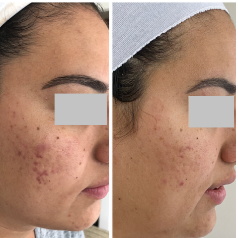 Acne Scarring - Before and after Dermpen Treatments
