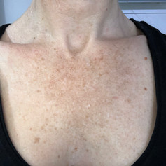 Actinic Bronzing and Pigmentation from long term sun damage - Before treatment photo
