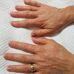 IPL pigmentation removal  Hands two weeks after ONE pigmentation removal treatment