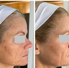 Before and after one IPL treatment
