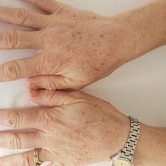 IPL Pigmentaion Removal.  Sun damage to hands before treatment
