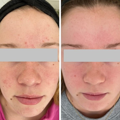 Acne - Before and after 3 Dermapen treatments