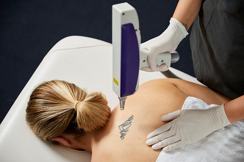 Laser-Tattoo-Removal-In-Use-10-1024x683.jpg