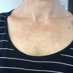 After one treatment - complexion clearer with less pigmentation