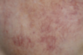 Red veins pic shutterstock_1435903991.jp