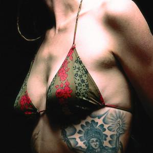 Como funcionam os tratamentos para remoção de tatuagem
