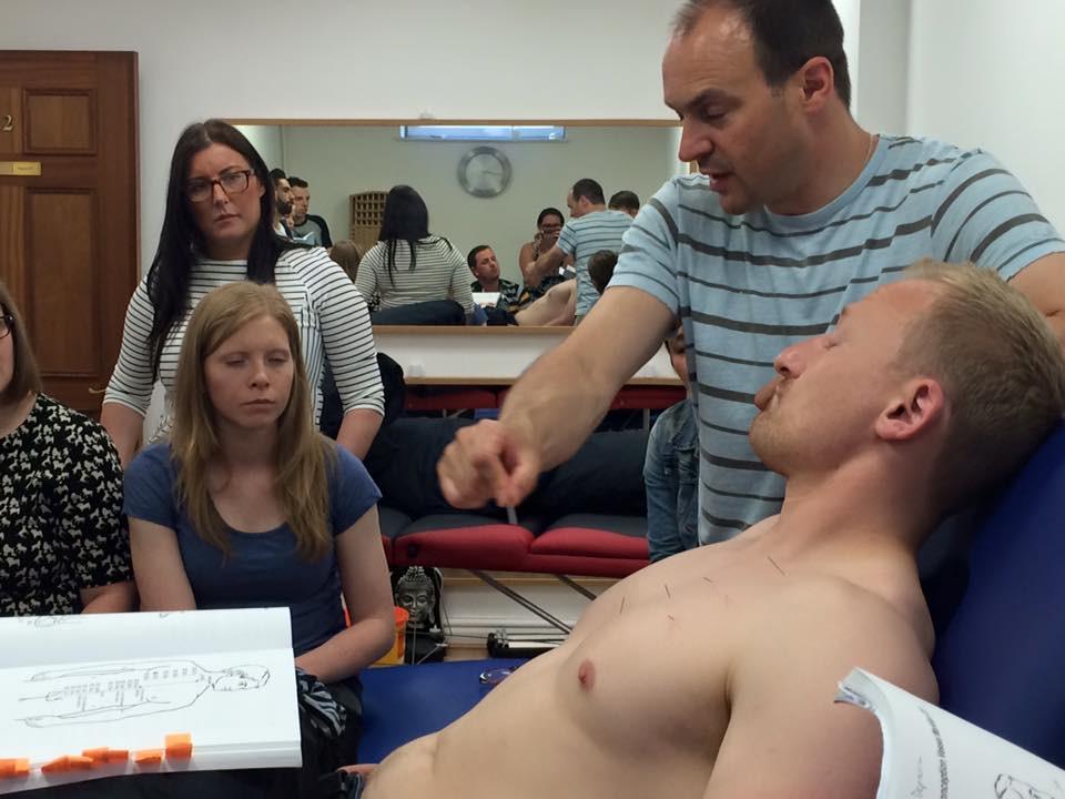 chest acupuncture.jpg