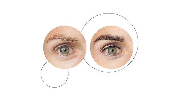 bg_brilliant-eyes-vorher-nachher_new.jpg