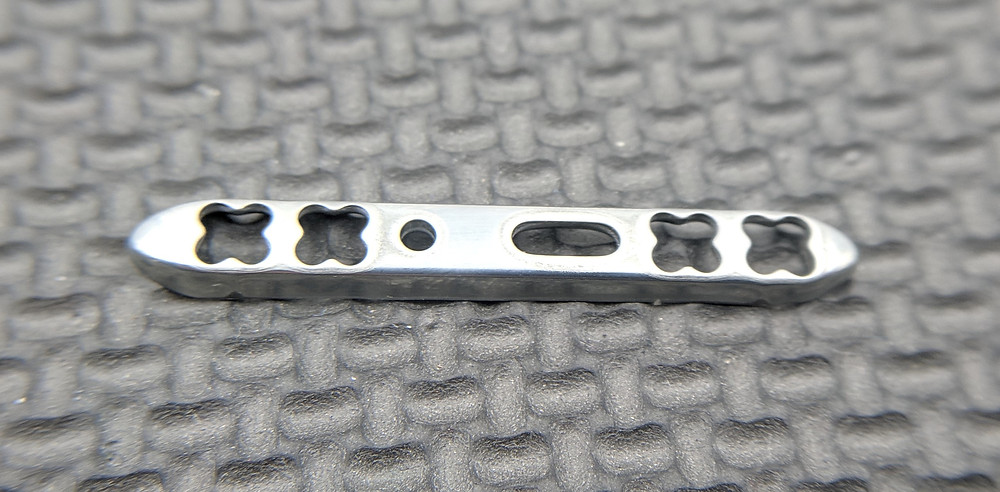 Nitinol bone fixture plate formed with electrochemical machining.