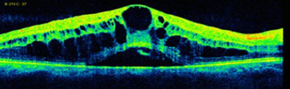 Case-5-a-Baseline-in-right-eye-showing-C