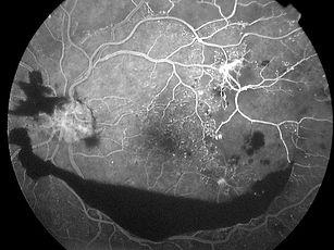 foto-12b-angiografia-retinopatia-diabeti