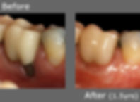 Back Tooth Recession.jpg