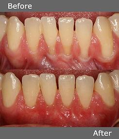 Multiple Tooth Gum Grafting.jpg
