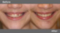 Smile Lift.jpg