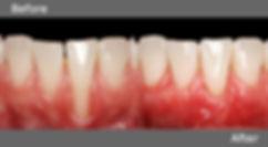 Gum Grafting.jpg
