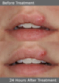 Cold Sore Treatment with Laser
