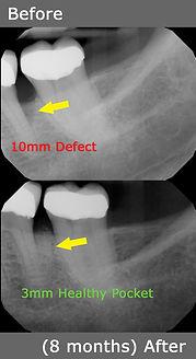 Bone Loss Correction.jpg