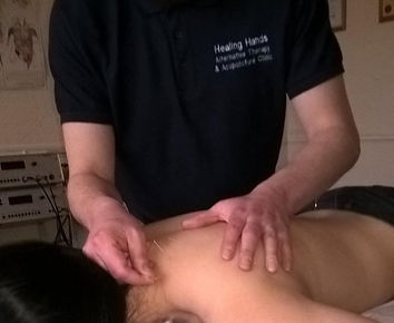 acupuncture stoke on trent