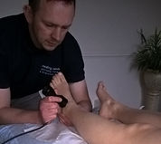 electro acupuncture in stoke on trent