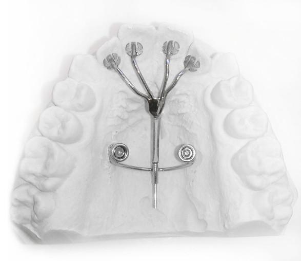 implantatgetragene Kucherhebelmechanik