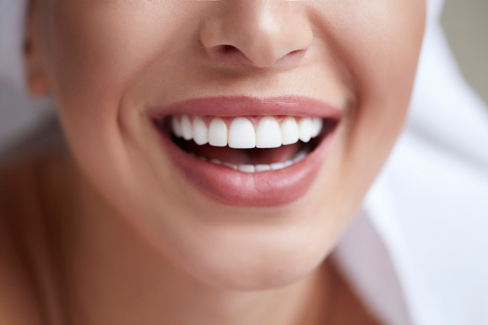 Person smiling   dry mouth CARRAWAY FAMILY AND COSMETIC DENTISTRY