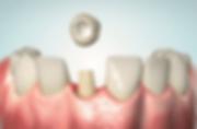 billige tandkroner
